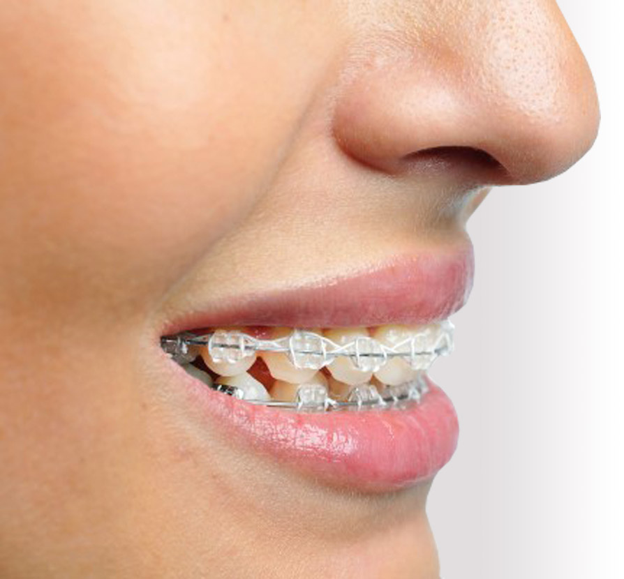 What are the benefits of clear braces?