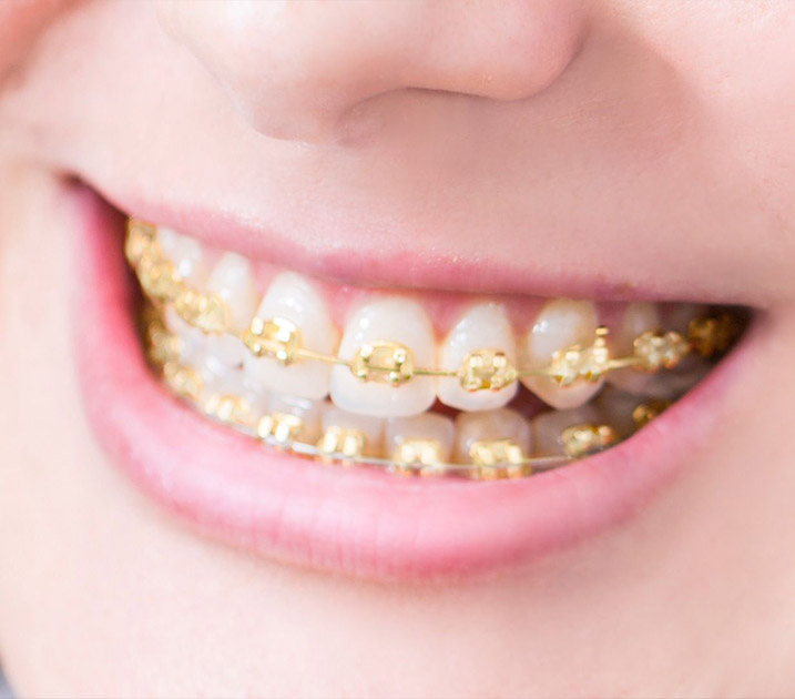 How do gold braces work?