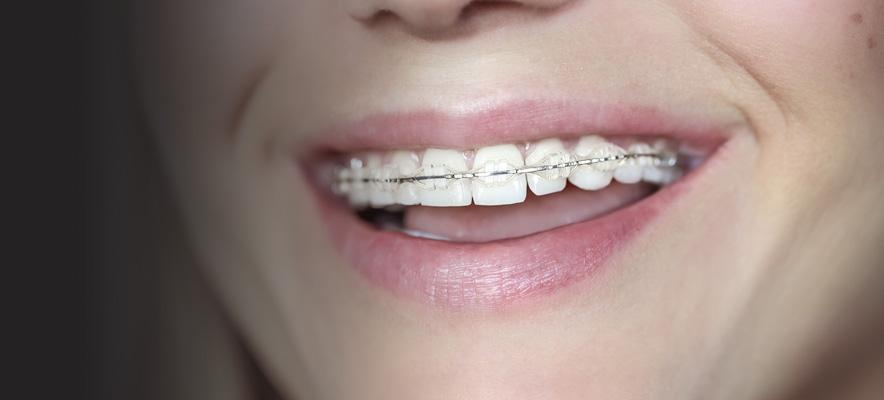 clear-braces-hero.jpg
